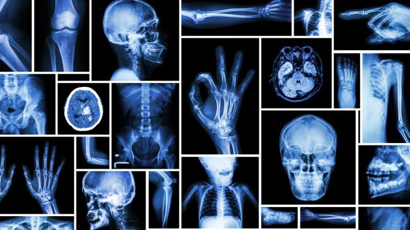 قسم تصوير الأشعة التشخيصية